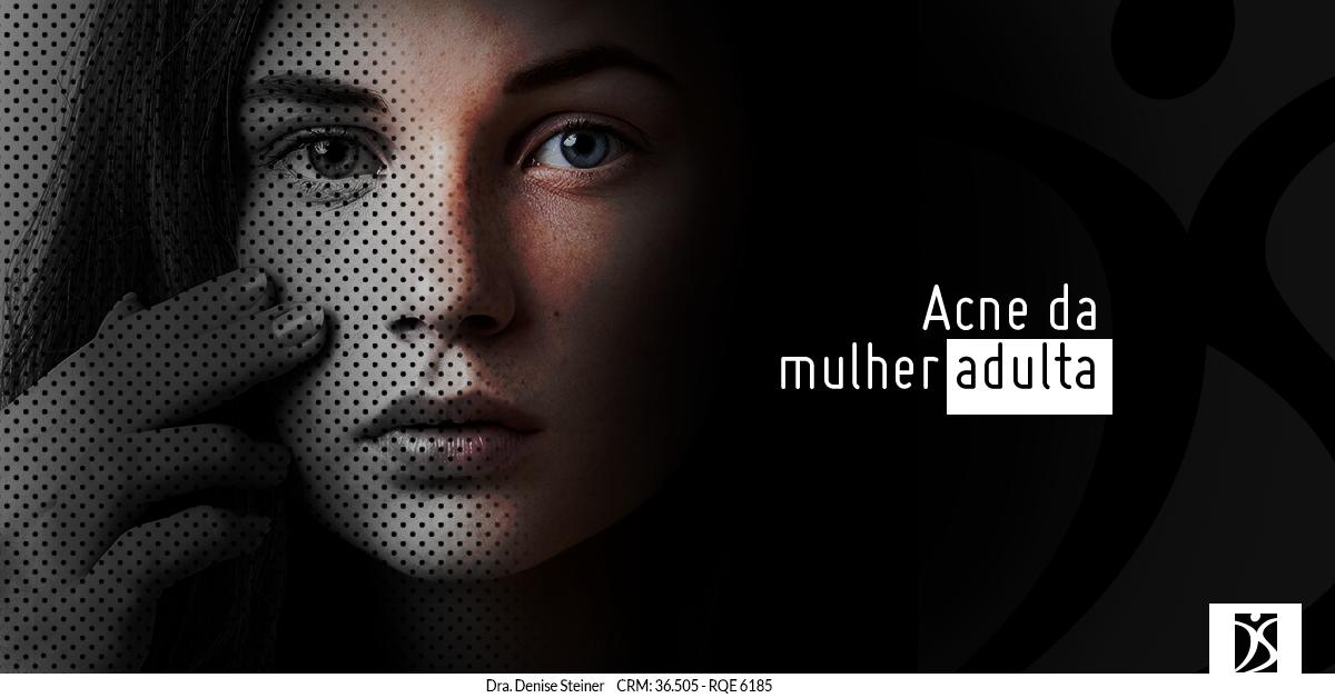 acne da mulher adulta